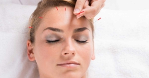 Why I fell in love with facial rejuvenation acupuncture